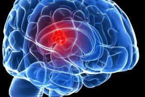 قصة المخ من سلسلة مروان داخل جسم الانسان بقلم أيمن شمس الدين